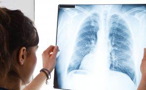 În România, sunt 15-25 de cazuri de pacienţi cu hipertensiune arterială pulmonară la un milion de locuitori
