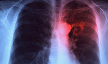 Giurgiu: Peste 1.000 de persoane vor beneficia de servicii medicale gratuite pentru depistarea tuberculozei