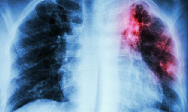 Ministerul Sănătăţii lansează noi achiziţii centralizate pentru medicamente necesare pacienţilor cu tuberculoză