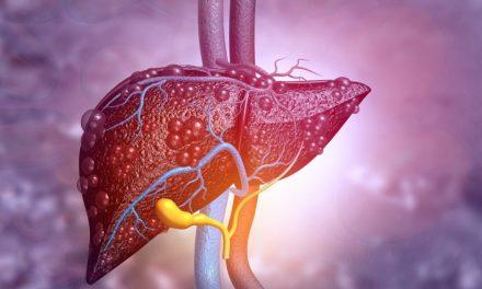 Boala Ficatului Gras, insuficient diagnosticată și tratată