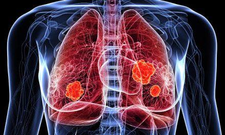 Ziua Mondială de luptă împotriva Cancerului Pulmonar, marcată anual pe 1 august